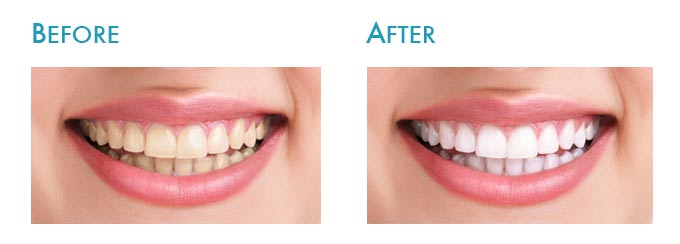 How Long Does Teeth Whitening Last Uk Teethwalls